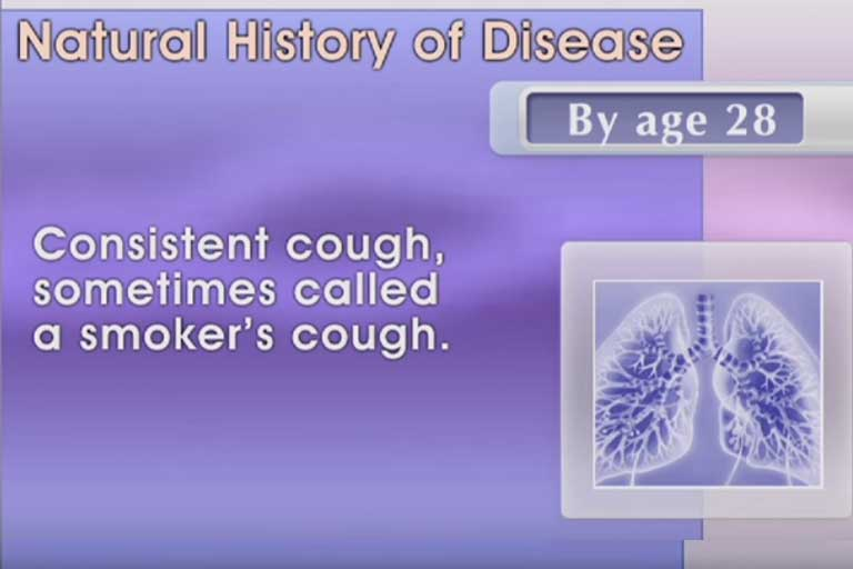 Natural history of diseases