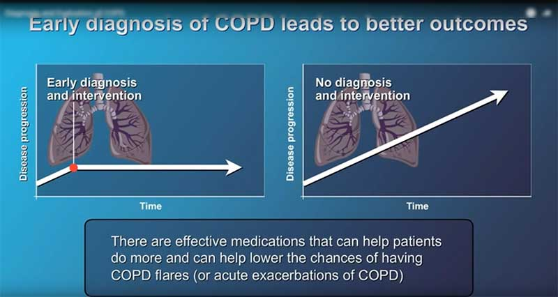 Image diagram of early diagnosis copd