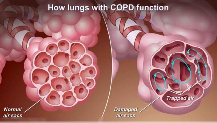 copd lungs with function