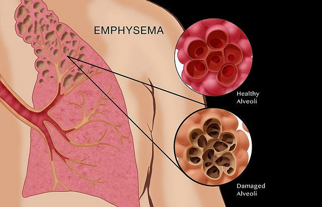 emphysema-and-copd