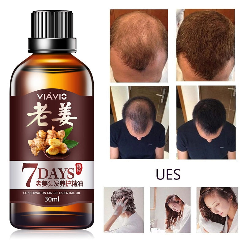 30ml Hair Loss Treatment