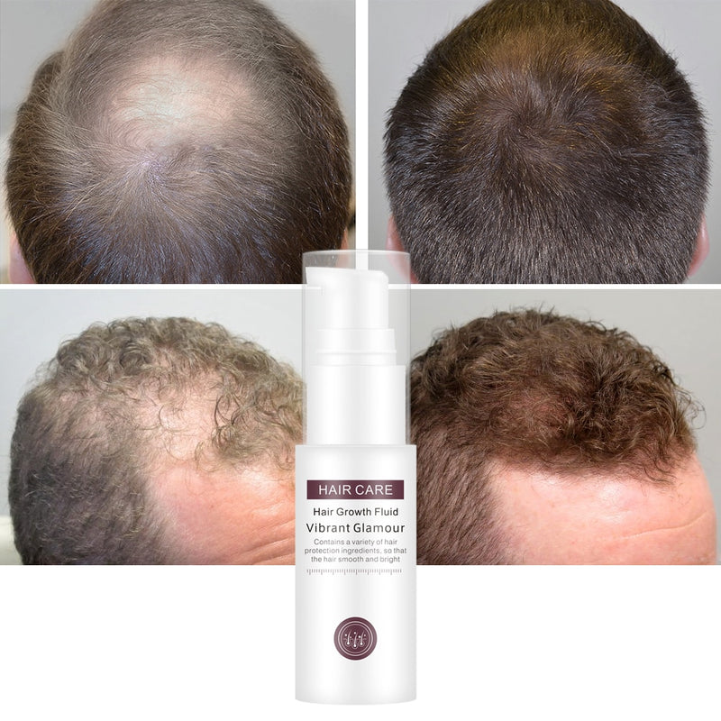 Hair Growth Essence Essential Spray