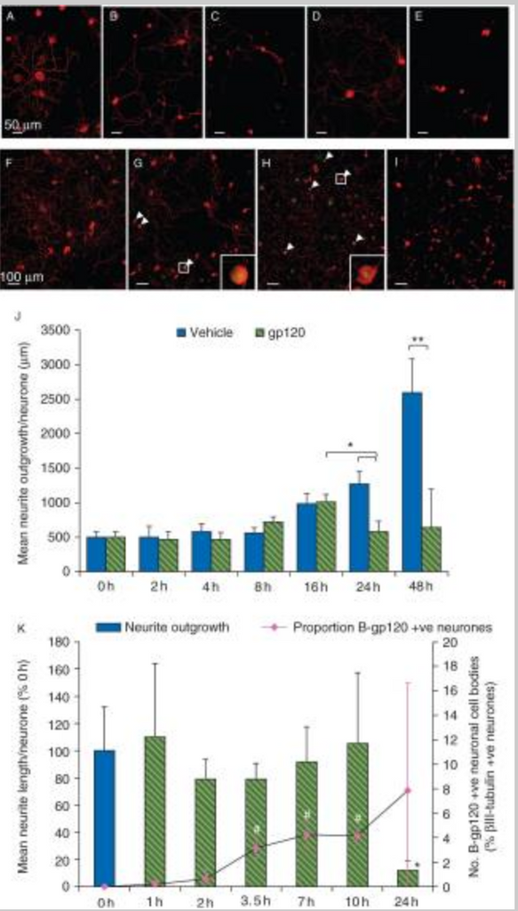 Macrophage-sensory neuronal interaction in HIV-1 gp120-induced neurotoxicity