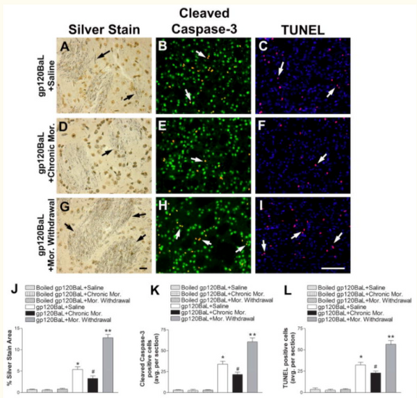 Pharmacological induction of CCL5 in vivo prevents gp120-mediated neuronal injury.