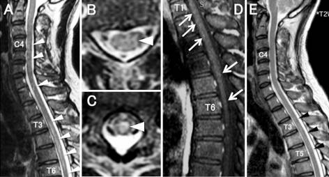 Longitudinally Extensive Transverse Myelitis and Optic Neuropathy Associated with Syphilitic Meningomyelitis and Human Immunodeficiency Virus Infection: A Case Report and Review of the Literature