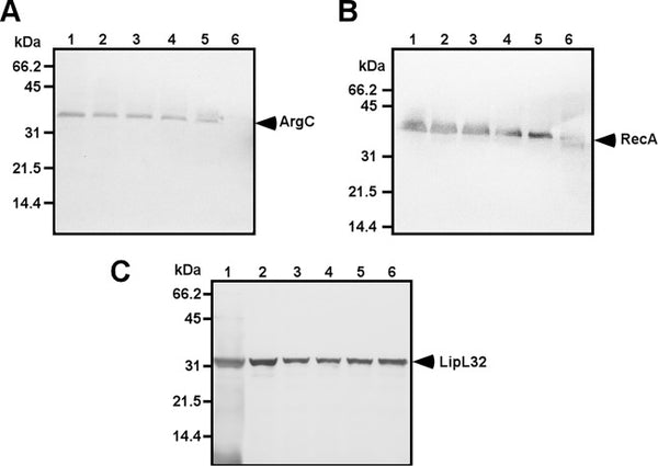In Vivo-Expressed Proteins of Virulent Leptospira interrogans Serovar Autumnalis N2 Elicit Strong IgM Responses of Value in Conclusive Diagnosis