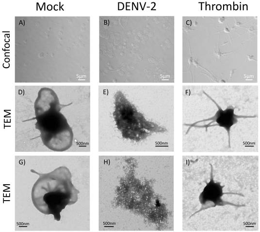 Dengue Virus Induces the Release of sCD40L and Changes in Levels of Membranal CD42b and CD40L Molecules in Human Platelets