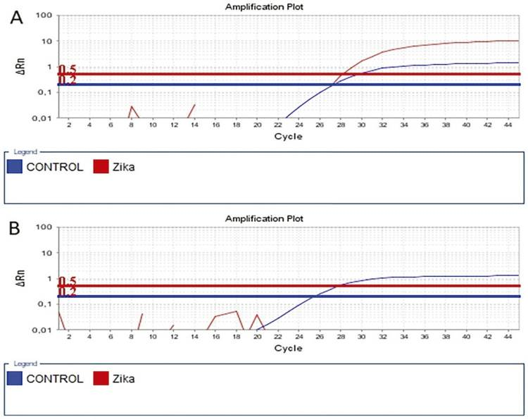 Epidemiological profile of Zika, Dengue and Chikungunya virus infections identified by medical and molecular evaluations in Rondonia, Brazil