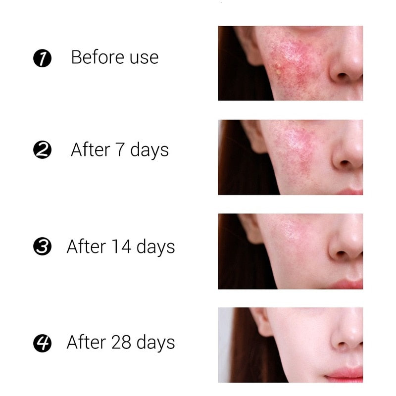 Acne Treatment Face Cream Blackhead Repair Gel Oil Control Shrink Pores Scar Whitening Moisturizer Skin Care Korean Cosmetics - outoff