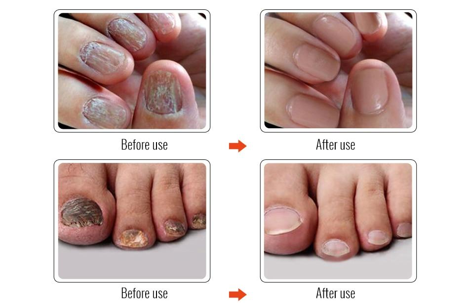 OMY LADY Fungal Nail Repair Essence Serum Toe Nail Fungus Treatment Nails Gel Anti Infection Paronychia Onychomycosis Nails Care - outoff