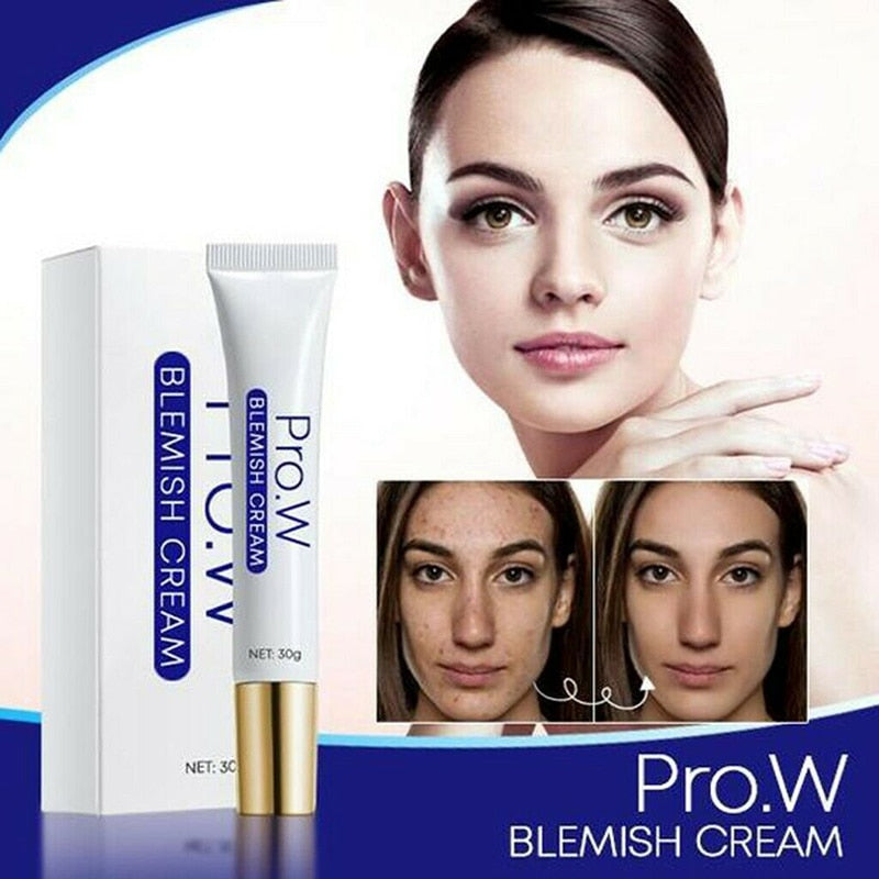 Pro.W Blemish Cream Freckles Acne Pimple Scar Dark Spots Removal Skin Whitening Brightening