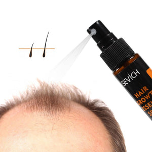 Sevich Hair Growth Essence Spray 30ml Hair Loss Product Hair Regrowth Spray Anti Hair Loss Treatment Hair Care Hair Growth TSLM1 - outoff