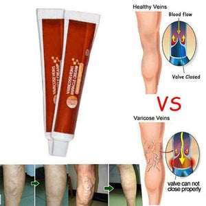 Varicose Veins Miracle Cream 2pcs Vein