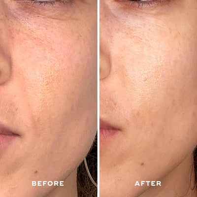 Brightening Treatment Mask