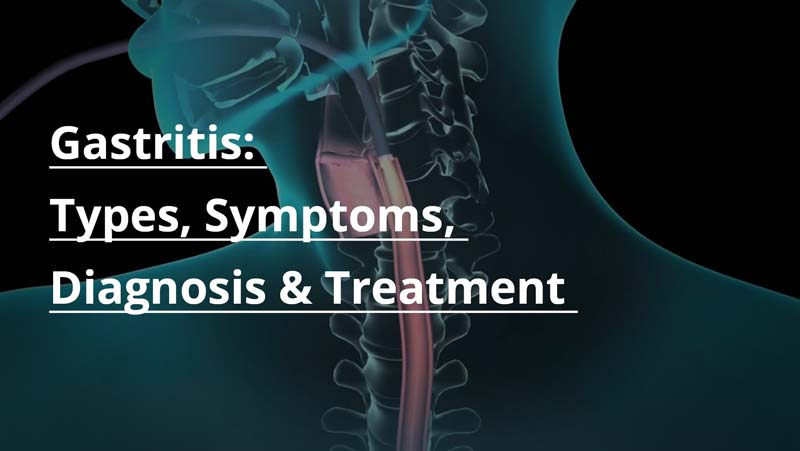 Gastritis: Types, Symptoms, Diagnosis, Treatment