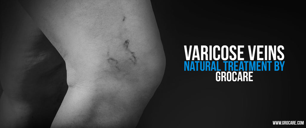 How to Treat Varicose Veins Naturally, Without Surgery