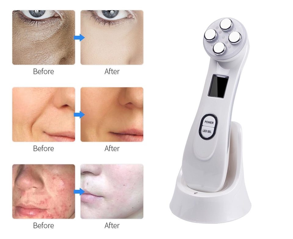 LED Photon Face Massager