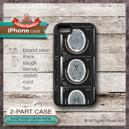 Brain Scan X-Ray Design - Choose from iPhone 4/4S, 5/5S, 5C, Samsung Galaxy S3 or S4 Case