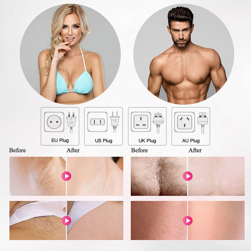 Laser IPL Hair Removal Device - $ 119.95 USD - iRelax® Novelty Store