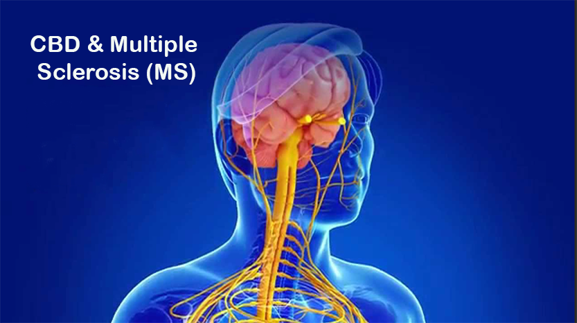 Can CBD Help Relieve the Symptoms of MS. Graphic Illustration of head and shoulders man showing the brain and spinal cord. Text: Multiple Sclerosis (MS)