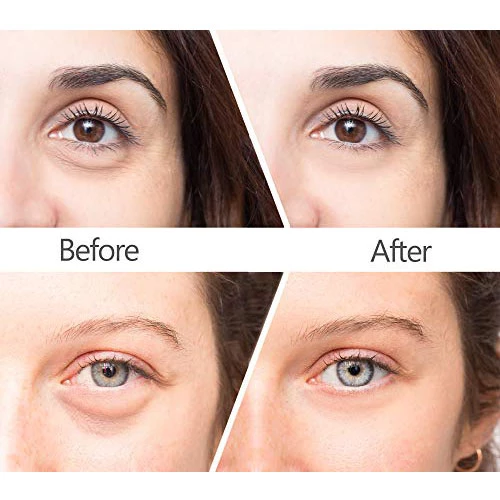 Magic Eye Cream 28 Seconds To Remove Eye Bags Dark Circles Eye