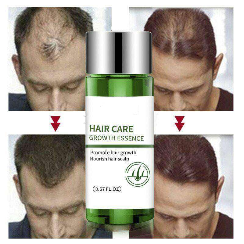 Exfoliz Fast and Powerful Hair Growth Essence for Men & Women - Ooala
