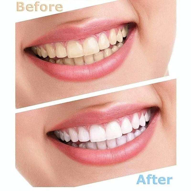 Ooala Toothful Electric Dental Teeth Whitening | Mini LED Light Whitener Oral Care 35659267-china
