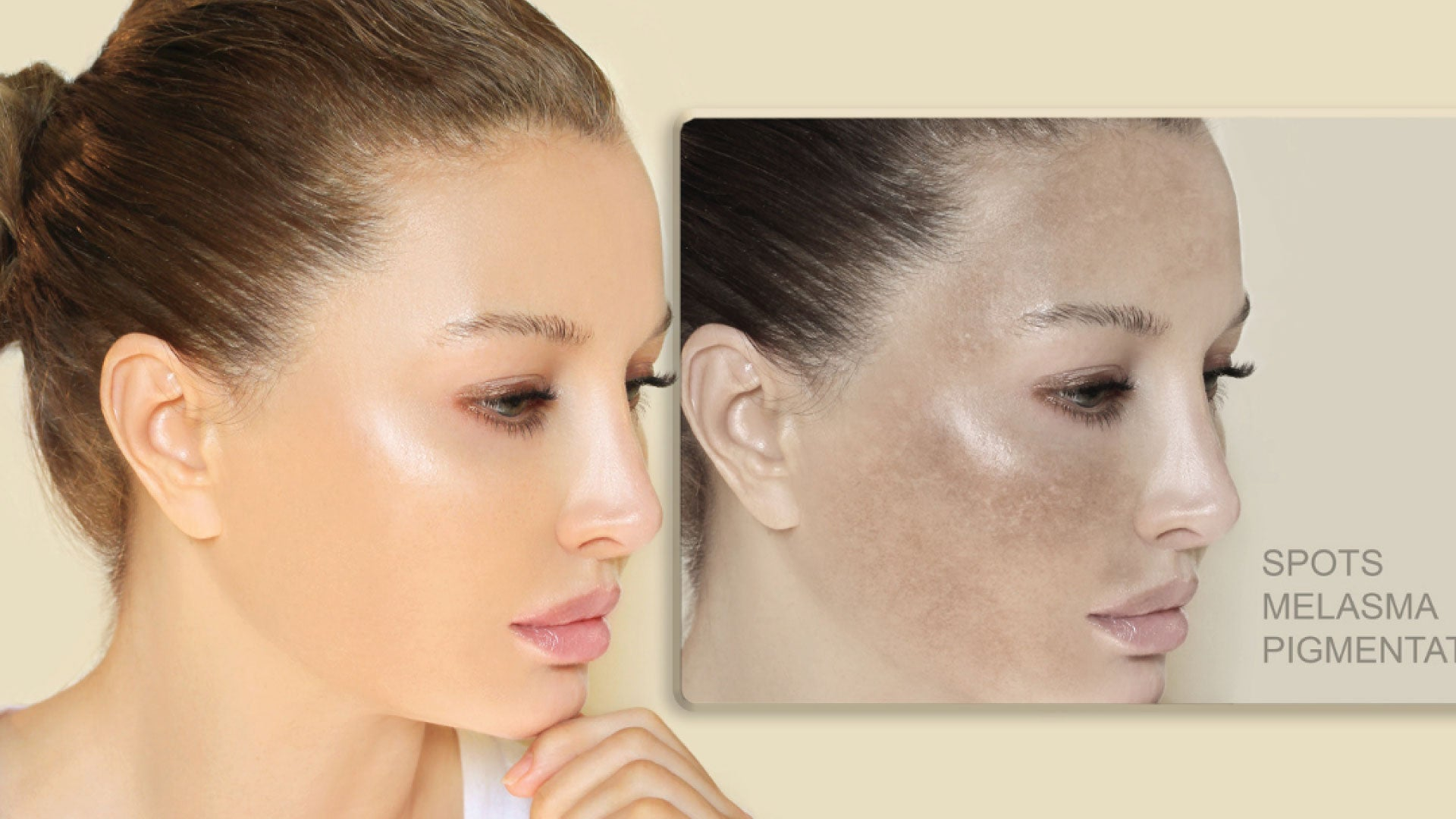 Hyperpigmentation: How To Recognize It & Reverse It