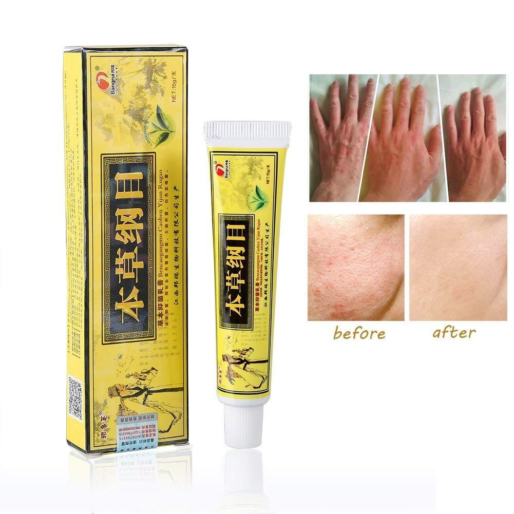 6pcs Advanced Psoriasis & Eczema Natural Herbal Cream + Express shipping