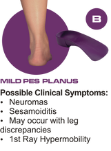Load image into Gallery viewer, B Quad Foot Orthotics