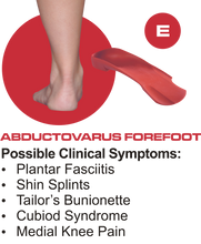 Load image into Gallery viewer, E+ Quad Foot Orthotics