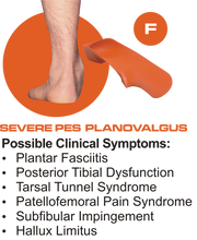 Load image into Gallery viewer, F Quad Foot Orthotics