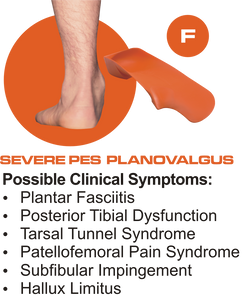 F Quad Foot Orthotics