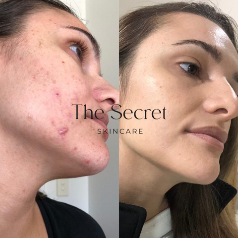 Acne Before and After #3