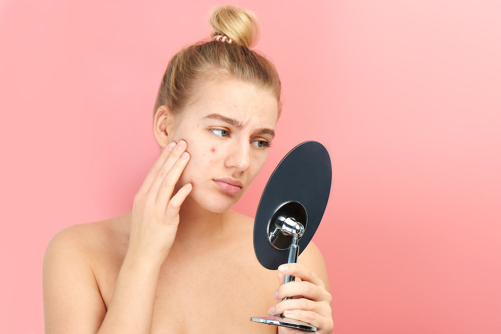 Girl with spot looking in mirror