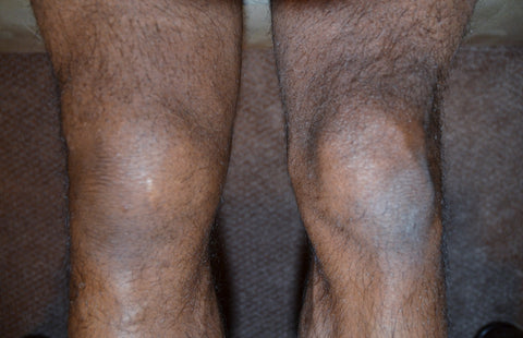 Note the swelling of the right knee compared to the left. Photo taken on Thursday.