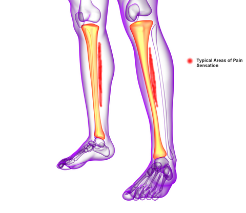 Shin Splints Pain Location Medial Tibial Stress Syndrome