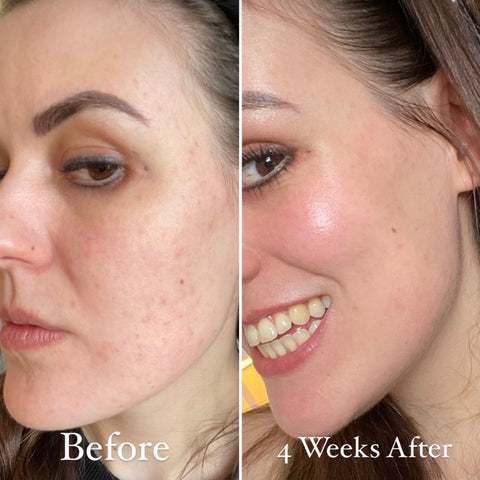 Amy Frith of BASE SKNCARE - Why I stopped wearing foundation