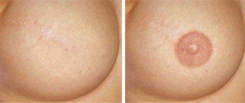 example of Areola breast pigmentation