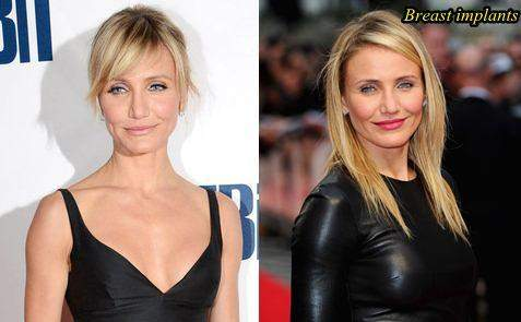 Cameron Diaz Before and After Breast Surgery