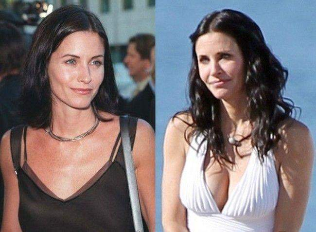 Courtney Cox Before and After Breast Surgery