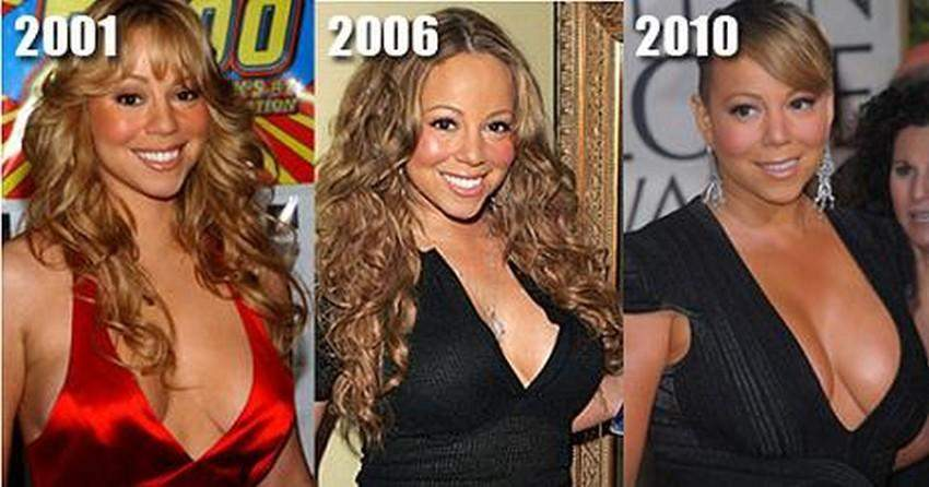 Mariah Carey Before and After Breast Surgery