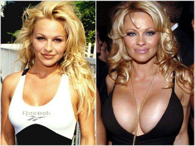 Pamela Anderson Before and After Breast Surgery