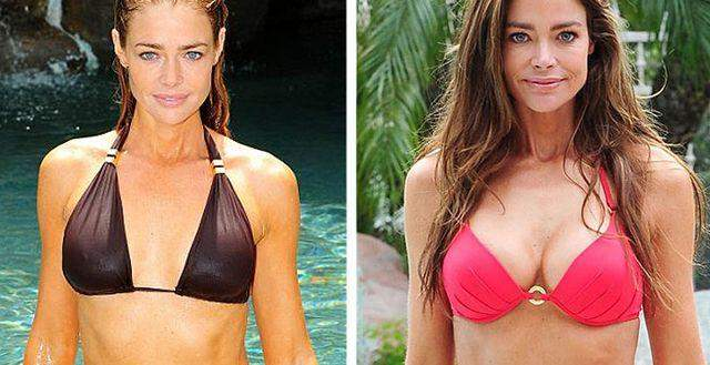 Denise Richards Before and After Boob Job