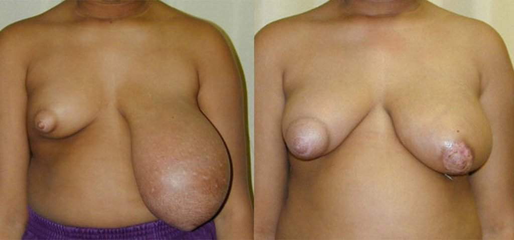 example of breast hypertrophy