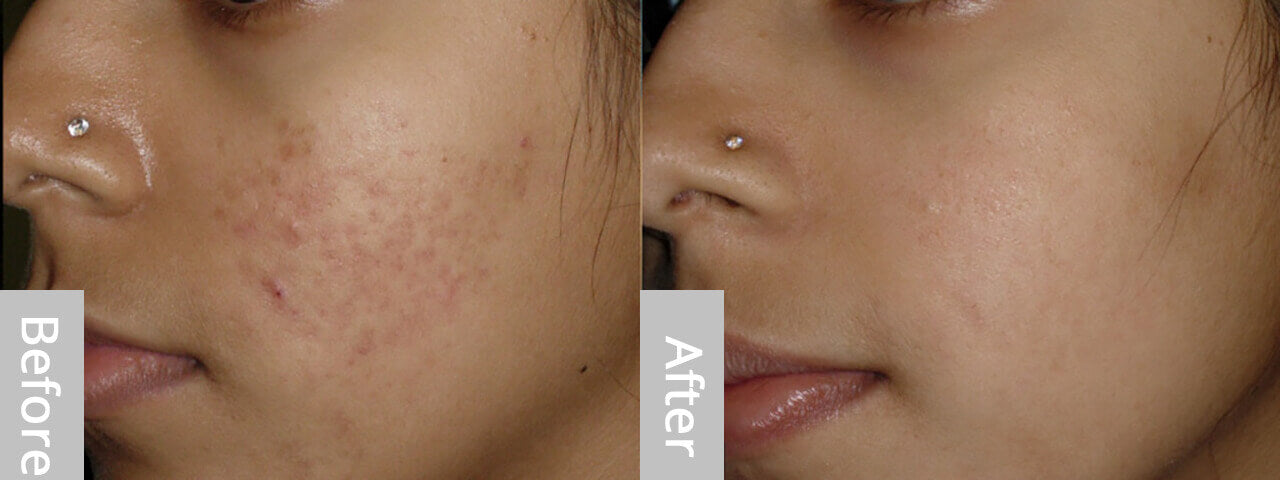 skin derma roller before and after