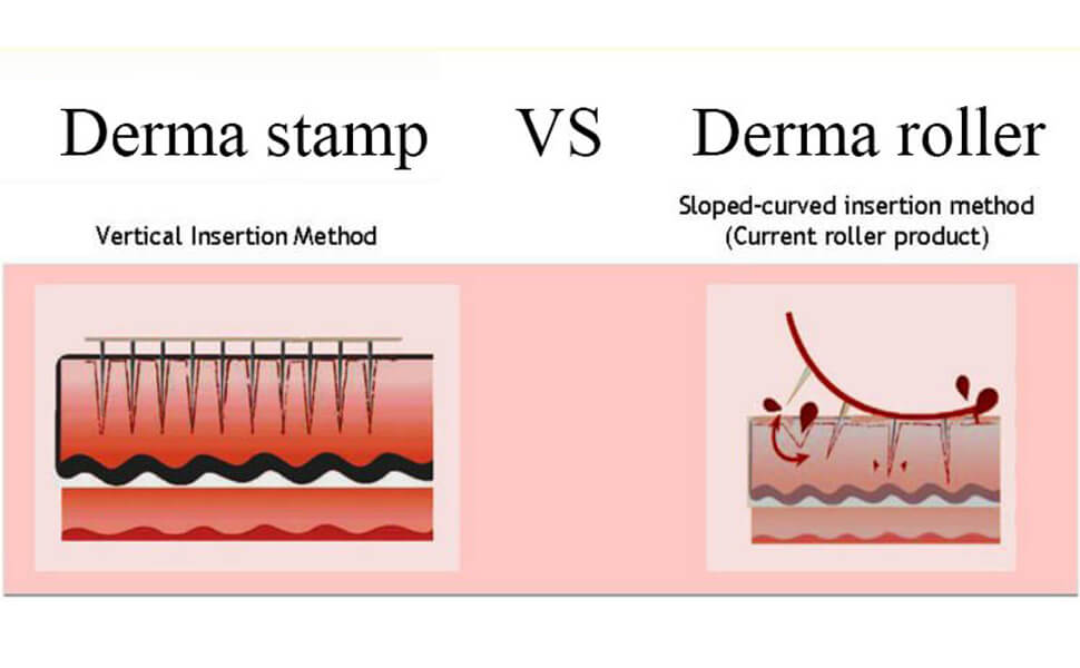 difference between derma roller and derma stamp