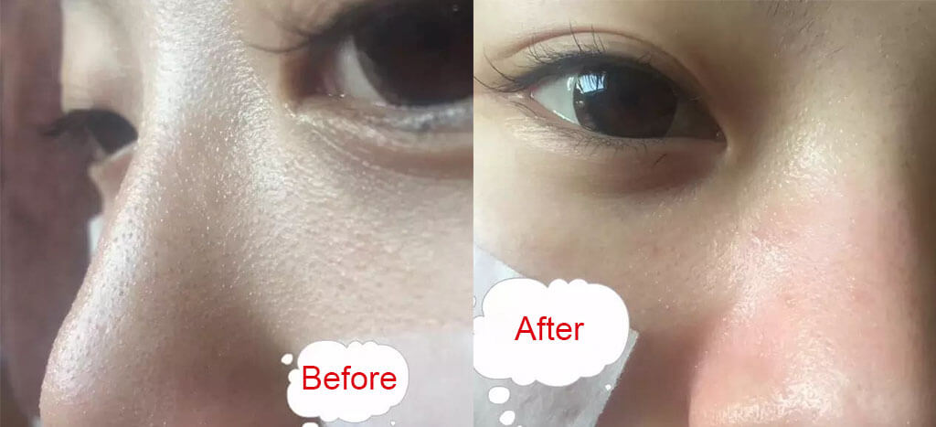 diamond dermabrasion treatment before and after