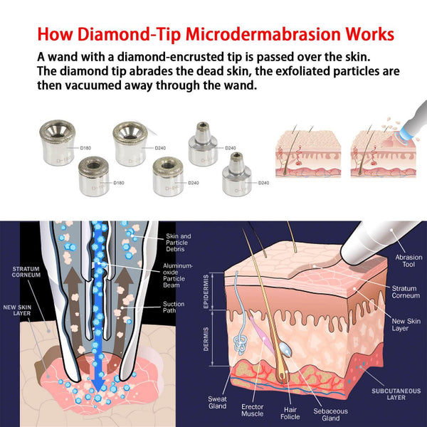 6pcs Dermabrasion Replacement Tips for Microdermabrasion Machine