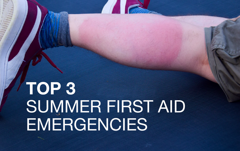 Top 3 Summer First Aid emergencies and how to treat them